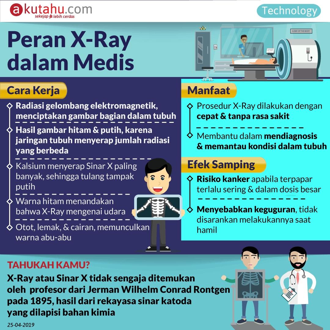 Peran X-Ray dalam Medis