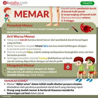 Memar